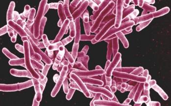 Tuberculosis: podría causar más de un millón de muertes de aquí a cinco años