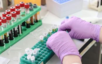 Sanidad pide a las empresas hacer PCR en vez de test rápidos