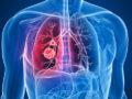 Cáncer de pulmón: La quimio-inmunoterapia puede acabar con tumores 'letales'