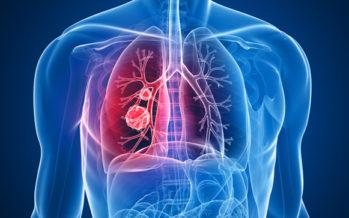 Cáncer pulmón: En España se detectan más de 28.600 casos al año