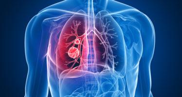 La biopsia líquida, capaz de detectar precozmente el cáncer de pulmón
