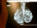 Científicos hallan en las hormonas masculinas una clave contra el cáncer de mama