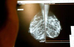 Cáncer de mama HER2: Primer tratamiento eficaz sin quimioterapia