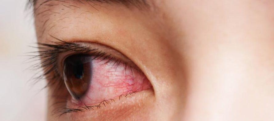 El 30% de pacientes de Covid-19 presenta alteraciones oculares, principalmente conjuntivitis