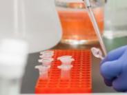 Los anticuerpos contra la Covid-19 persisten al menos nueve meses tras la infección