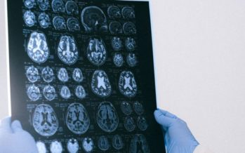 Barcelona acogerá el CongresoAnualde Neurocirugía de la EANS