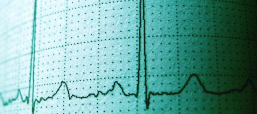 En España el 4% de los mayores de 40 años presentan fibrilación auricular