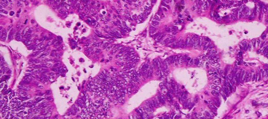 Adenocarcinoma pulmonar: ¿Cómo se trata?