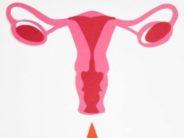 Miomas uterinos mediante embolización