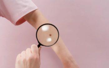 Melanoma: En tres de cada cuatro casos aparece sin que haya habido un lunar previo